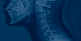 Spinal Cord Injuries - Law Offices of Brian Breiter